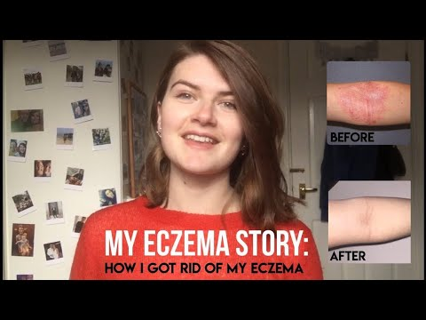 HOW TO GET RID OF ECZEMA | MY JOURNEY