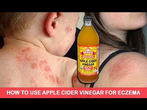 How To Use Apple Cider Vinegar To Treat Eczema, It's Unbelievably Effective