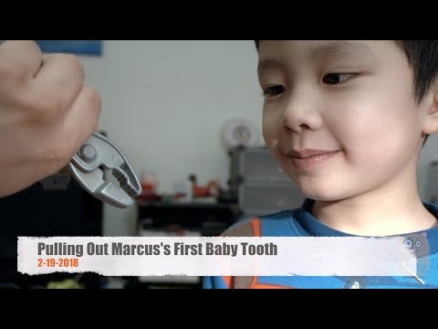 Pulling Out Marcus's First Baby Tooth
