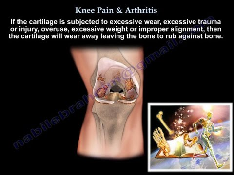 Knee Pain , Knee arthritis treatment  - Everything You Need To Know - Dr. Nabil Ebraheim, M.D.