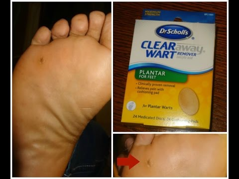 Foot Callus/ Plantar Wart Surgery Removal 8 month Update!!