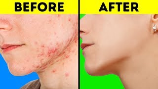 Download 33 EASY LIFE HACKS FOR DULL AND ACNE SKIN Video