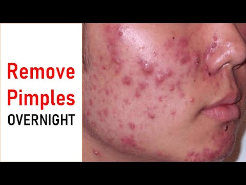 सिर्फ 1 दिन में पाए मुहांसे से छुटकारा/Get Rid of Pimples & Acne in 1 Day /Remove Pimples OVERNIGHT