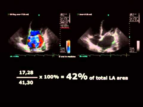 Echocardiographic Assesment of Mitral Regurgitation