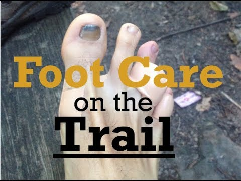How to Prevent Blisters & Foot Injuries on the Trail