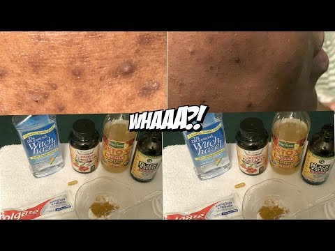 REMOVE DARK SPOTS IN 2-4 DAYS With THIS METHOD!