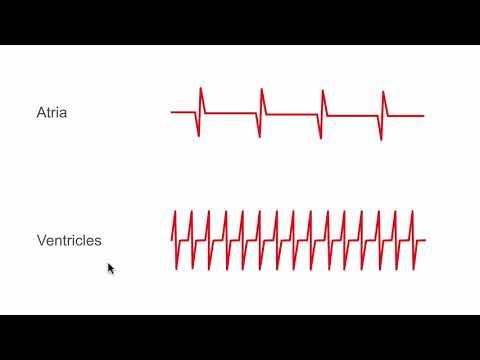 Sensing and electrograms