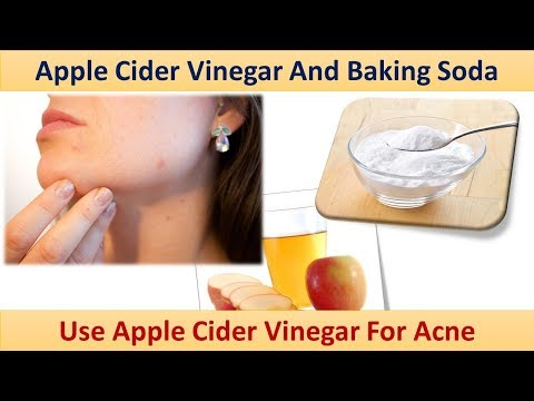 How To Use Apple Cider Vinegar For Acne - Apple Cider Vinegar And Baking Soda