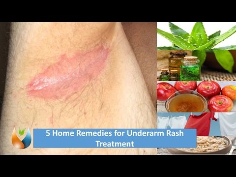 5 Home Remedies for Underarm Rash Treatment