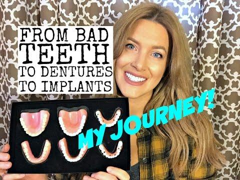 Bad teeth, dentures, and dental implants: My Story