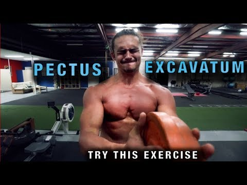 The Plate Pinch - A Great Exercise to Fix Pectus [Sunken Chest]