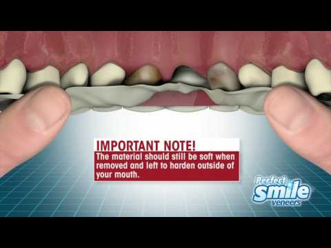 Perfect Smile Veneers Instructional - Getting Started