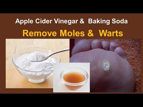 How To Remove Moles &  Warts  - Apple Cider Vinegar &  Baking Soda  Remedy