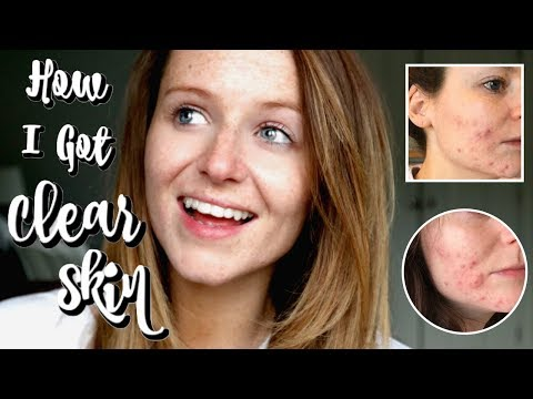MY ACNE STORY & FAVOURITE SKIN CARE FOR ACNE PRONE SKIN