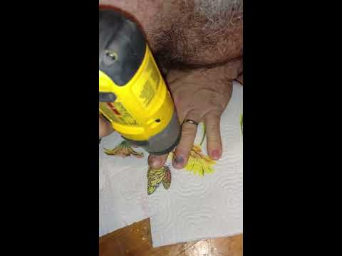 Relieving a blood blister under a fingernail using a drill