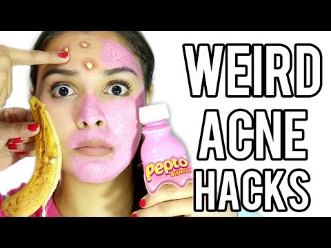 10 WEIRD Acne & Zit Hacks that work FAST!
