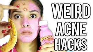 10 Weird Acne Zit Hacks That Work Fast