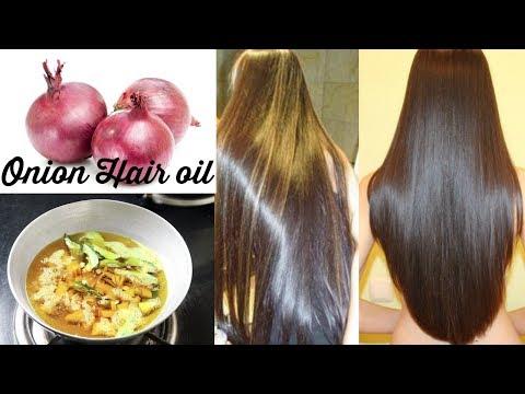Onion Hair Oil | Get Super Fast Hair Growth & Prevent Hair Loss By Using Onion Hair Oil