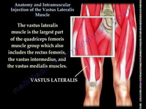 Vastus Lateralis intramuscular Injection - Everything You Need To Know - Dr. Nabil Ebraheim