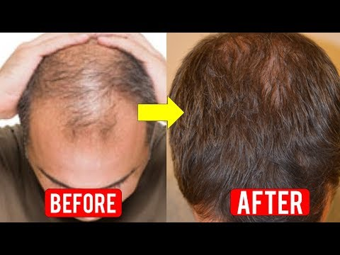 Hair Regrowth for Men Naturally