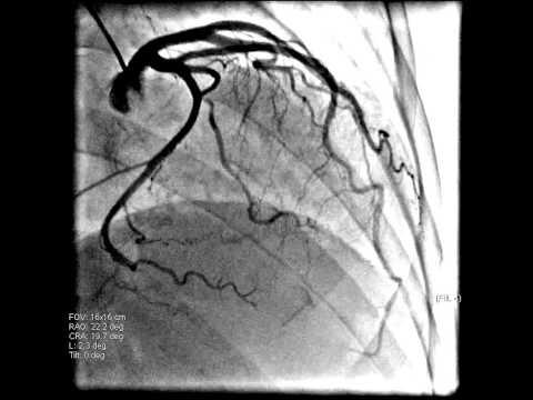 Coronary angiography views