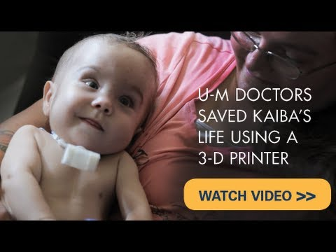 Baby's life saved with groundbreaking 3D printed device from U-M that restored his breathing
