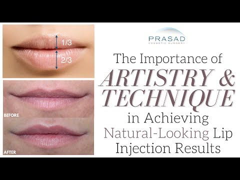 How to Achieve Natural-Looking and Attractive Lips with the Golden Ratio and Filler Technique