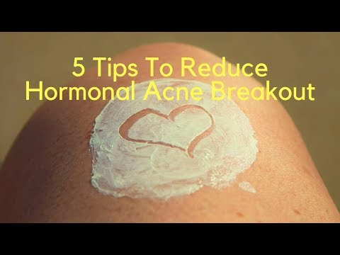 5 Tips To Reduce Hormonal Acne Breakout