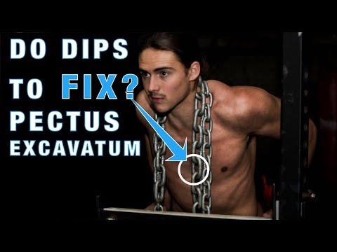 DIPS - A Great Exercise to Fix Pectus Excavatum [Sunken Chest]