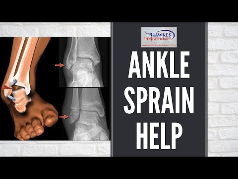 Lateral ankle sprain treatment & rehabilitation exercises video