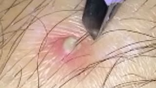 Best Dilated Pores, Waxing, Blackheads & Pimple Popping 2018