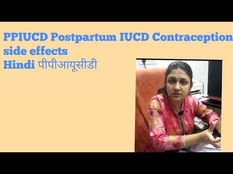 PPIUCD Postpartum IUCD Contraception side effects Hindi पीपीआयूसीडी