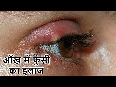 आँख में फुंसी का इलाज | How To Get Rid Of Eye Stye