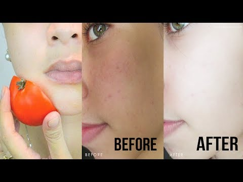 How to get Brighter Skin & Crystal Clear Glowing Skin OVERNIGHT!! You will be amazed by the results!