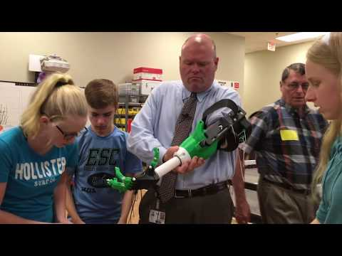 Prosthetic Arm Final Fitting
