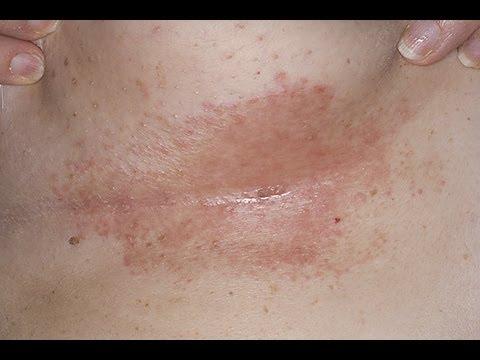 DermTV - How to Treat Under Breast Rashes & Infections [DermTV.com Epi 190]