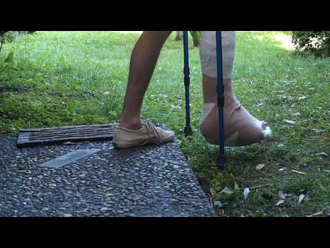 dislocated ankle and full leg cast: walking on grass