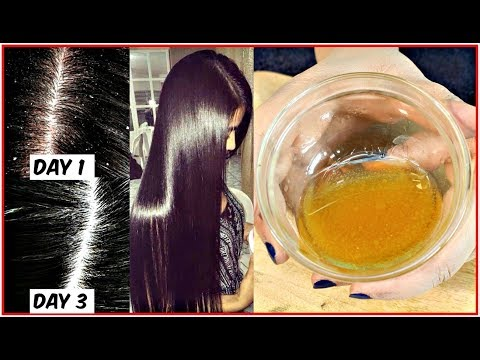 Apply This  Mixture On Your Scalp to Get Rid of Dandruff For Ever - Anti-Dandruff Home Remedy