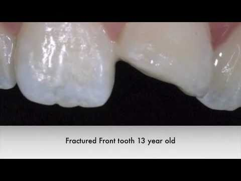 White Filling Restoration Front Tooth