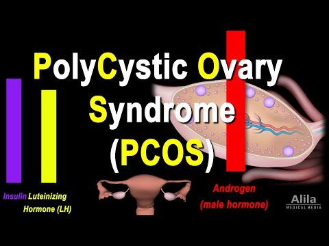Polycystic Ovary Syndrome (PCOS) Pathology and Treatment, Animation