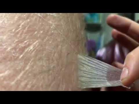 skin peeling from sunburn