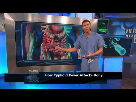 How Typhoid Fever Affects the Body -- The Doctors