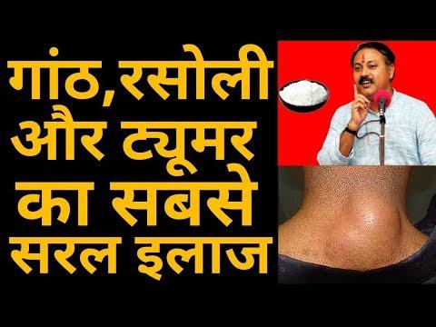 शरीर के किसी भी हिस्से में गांठ, रसोली और ट्यूमर का सबसे सरल इलाज   lump,rasoli & tumor   RajivDixit
