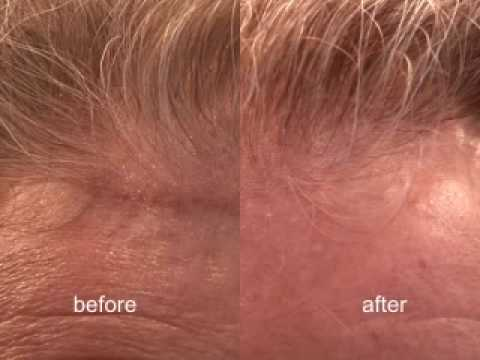 Cleaning the Front Hairline of your Hair Replacement System