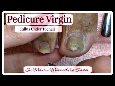 👣 Pedicure Tutorial Clients First Pedicure Ever Thick Toenails Callus Under Nail 👣