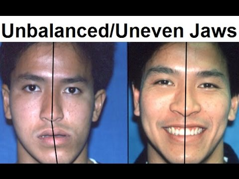 Orthodontic Treatment of Asymmetrical, Unbalanced, Disproportionate, or Unequal Jaw by Dr Mike Mew