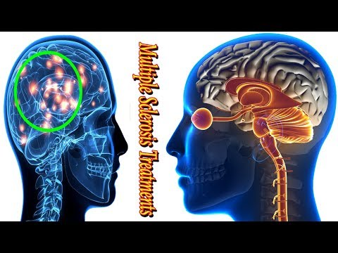 multiple sclerosis treatment -  what is ms symptoms, causes and diagnosis