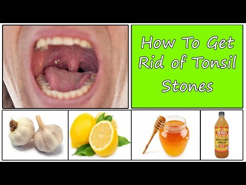 How To Get Rid of Tonsil Stones Naturally Fast -  V 4 YOU