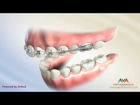 Overjet (AKA Overbite) Treatment by Wilson Bimetric Distalizing Arch - Orthodontic Treatment