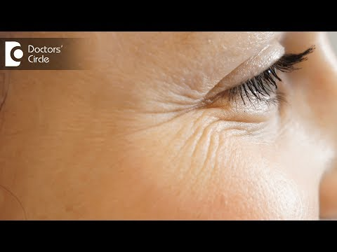 How to prevent lines and wrinkles around eyes? - Dr. Amee Daxini